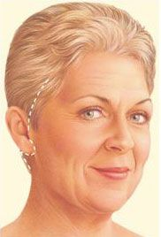 traditional facelift illustration