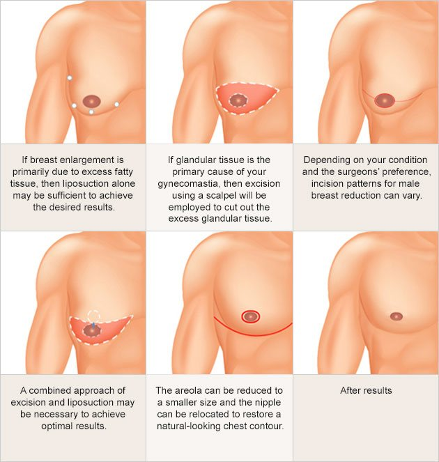 Male breast reduction graphic