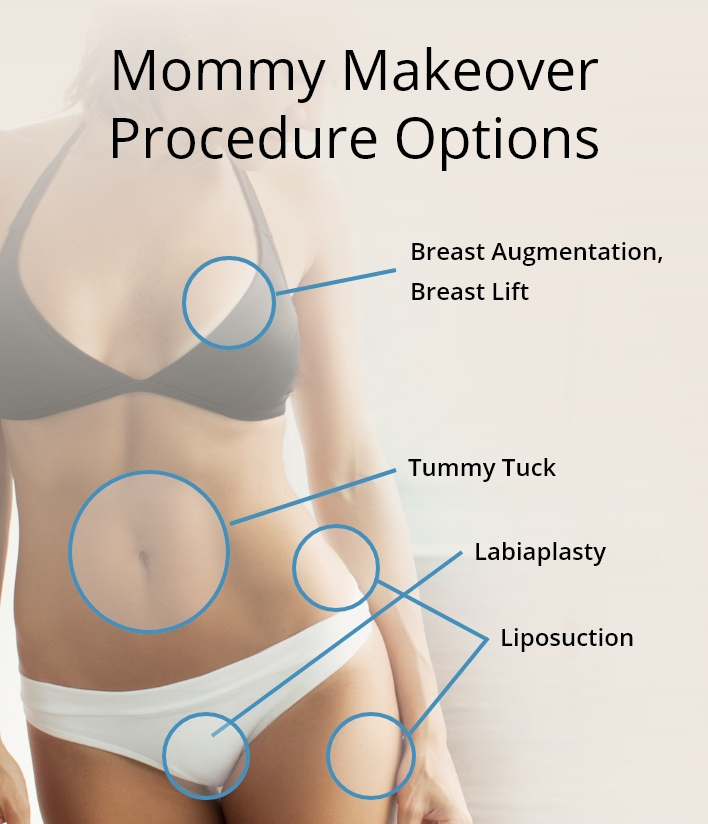 mommy makeover procedure options