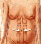 tighten abdominal muscles illustration