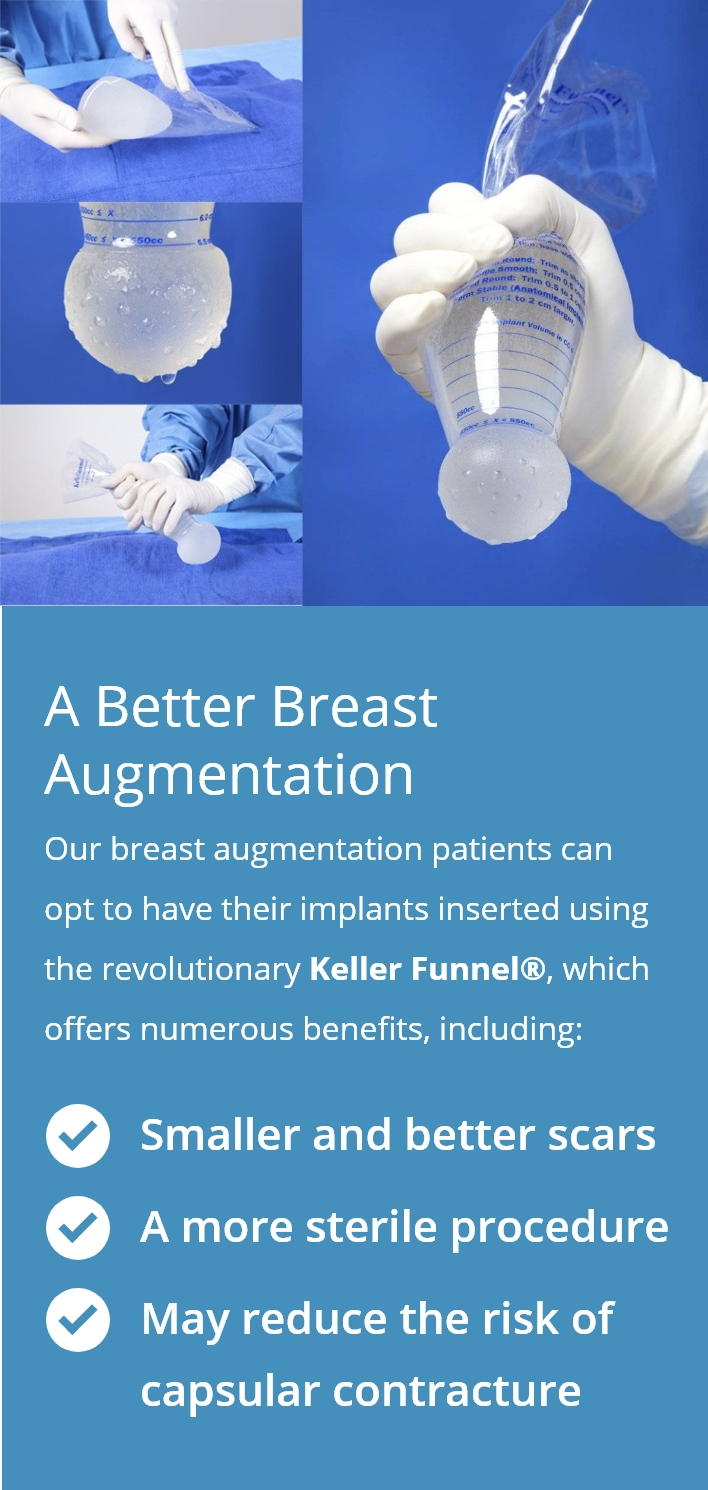 a better breast augmentation diagram